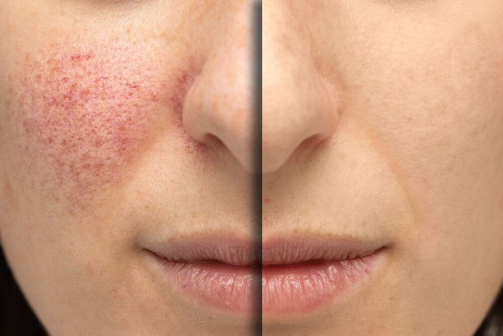 A close up view on the cheeks of a young Caucasian woman suffering from rosacea. Before and after laser surgery to remove the blemishes.